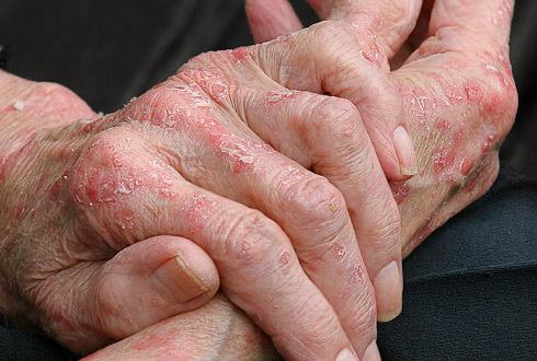Комбинированные лекарственные средства при кожных аллергиях
