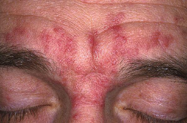аллергия в виде высыпаний на коже