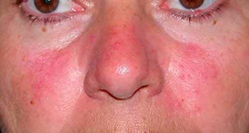 аллергия на щеках причины