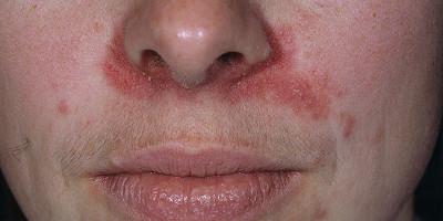 аллергия на коже красные прыщи чешутся лечение
