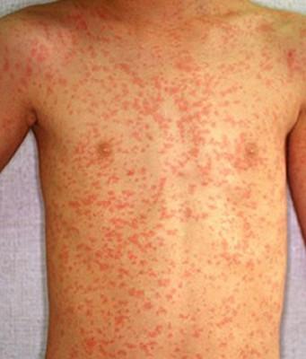 Главные причины кожной аллергии